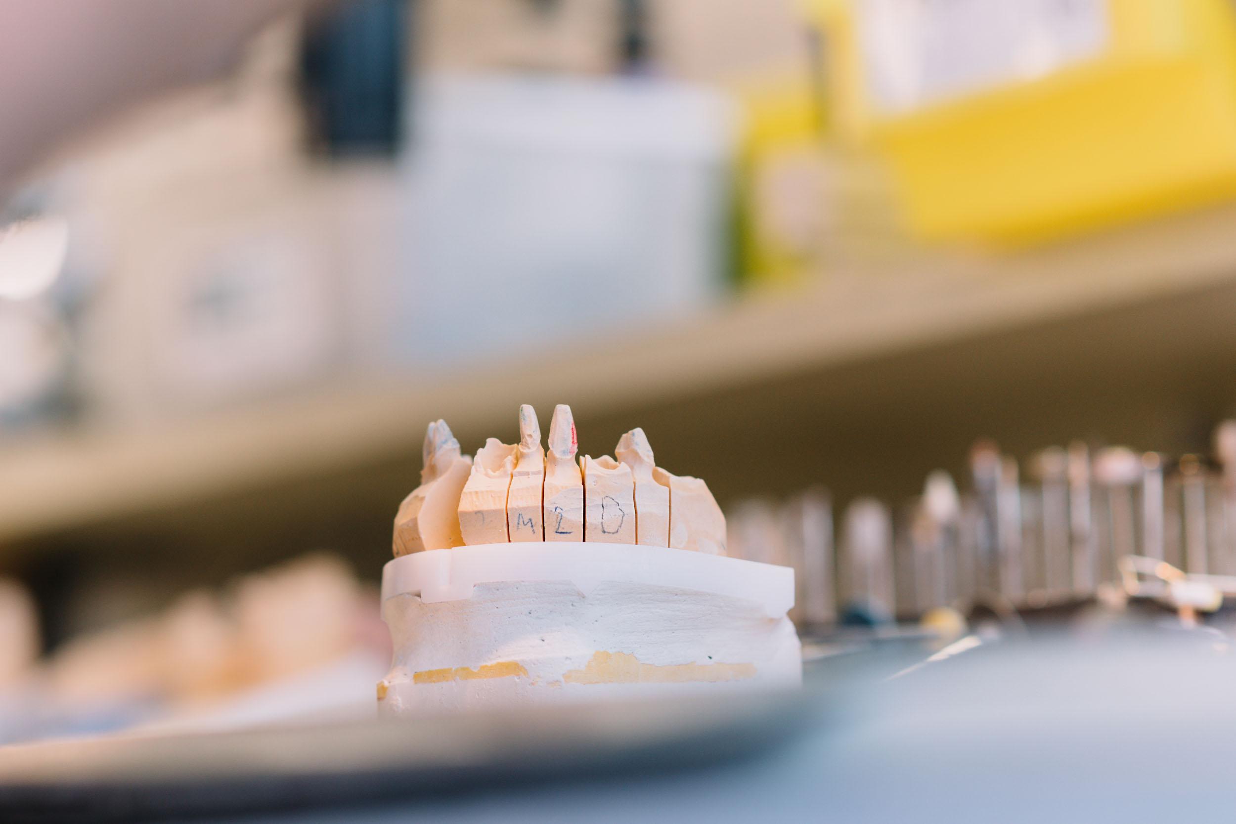 Dentaal Tema - Tandlabo Brugge